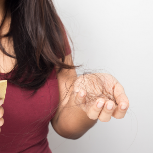 11 Hidden Causes of Thinning Hair in Women (and what to do about it)